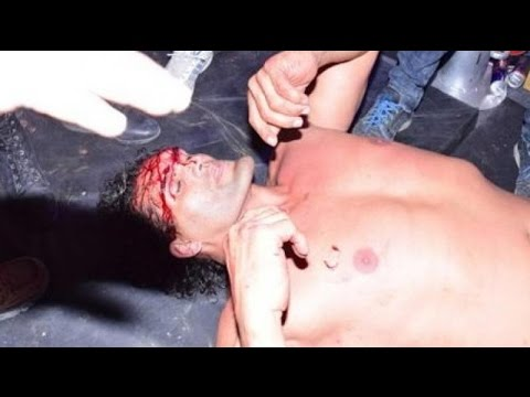 Khali head injury during a fight in Haldwani