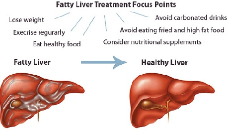 Nonalcoholic Fatty Liver Disease and Risk of Diabetes