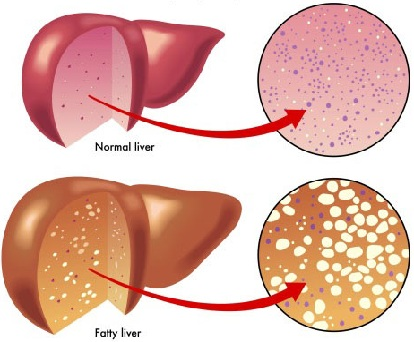 Reversing Fatty Liver Disease Symptoms/ Treatment