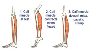 Thigh Muscle Cramps Treatment