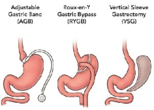 Bariatric Surgery for Severe Obesity/ Weight Loss
