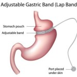 Lap Band Helps Fat People Who Want To Lose Their Weight – Lap-Band Reviews and Cost