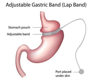 Lap-Band Adjustable Gastric Banding System