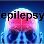Epilepsy Surgery Options – Epilepsy Surgery Side Effects