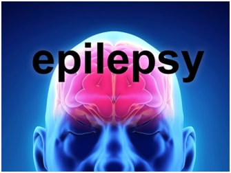 Epilepsy Surgery Options - Epilepsy Surgery Side Effects